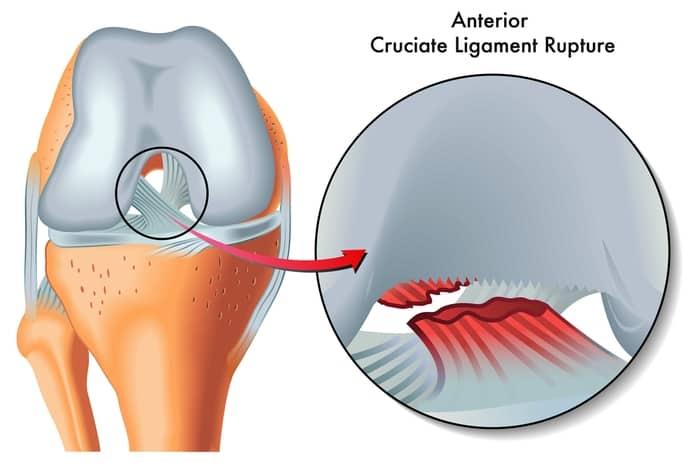 קרע ברצועה הצולבת בברך אסטריקס פיזיותרפיה רעננה